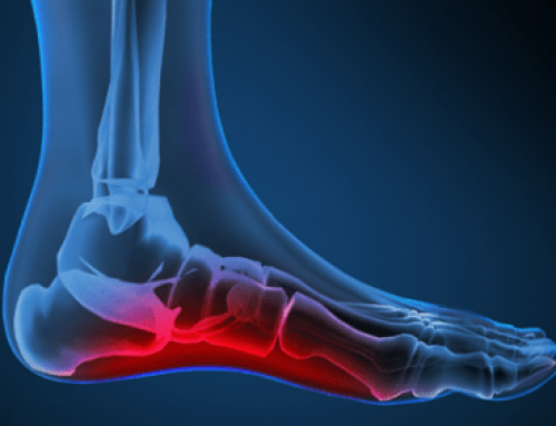Effective Ways to Treat Painful Symptoms of Plantar Fasciitis